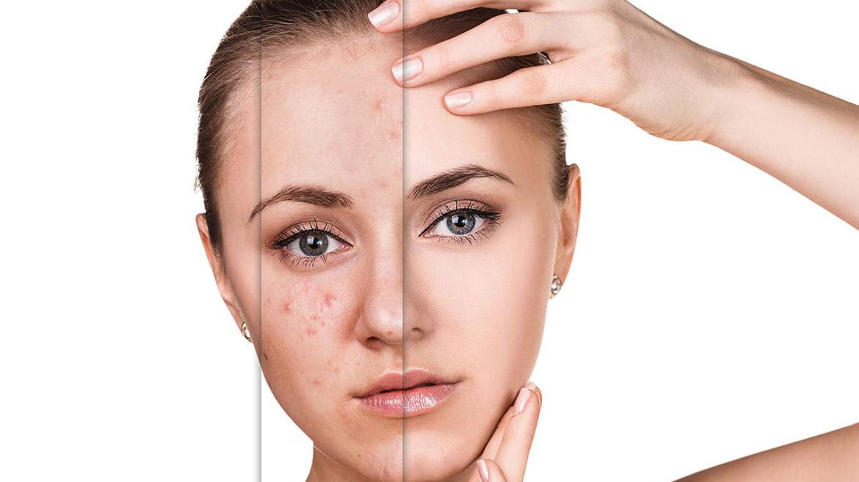 Terapia anti acné