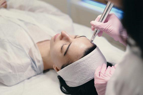 Fotona - Conozca sus usos para la reducción de manchas y arrugas