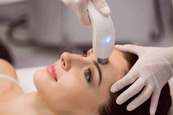 Rejuvenezca su piel con el tratamiento de Láser CO2