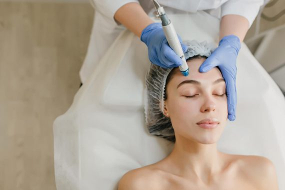 Causas de la pigmentación facial y cómo disminuir las manchas en el rostro